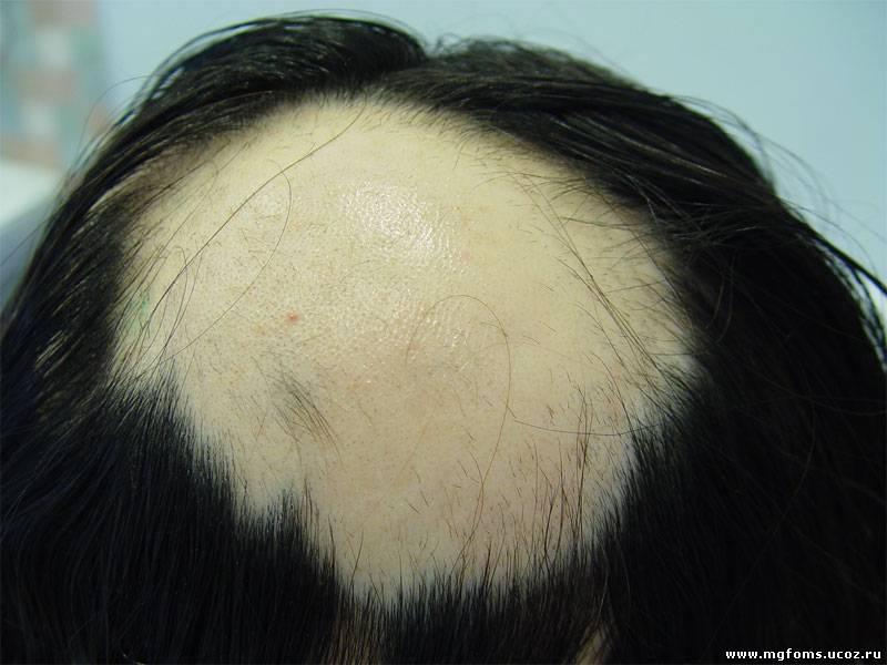 Из за грибка на голове могут выпадать волосы